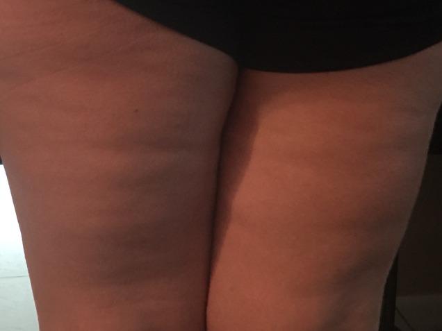 back of legs